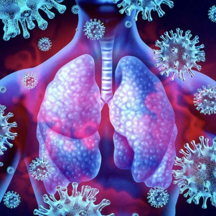 433 contagios por COVID-19